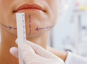 chin agumentation surgery